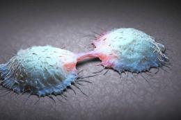 Gesundheit: So funktioniert die Früherkennung gegen Darmkrebs