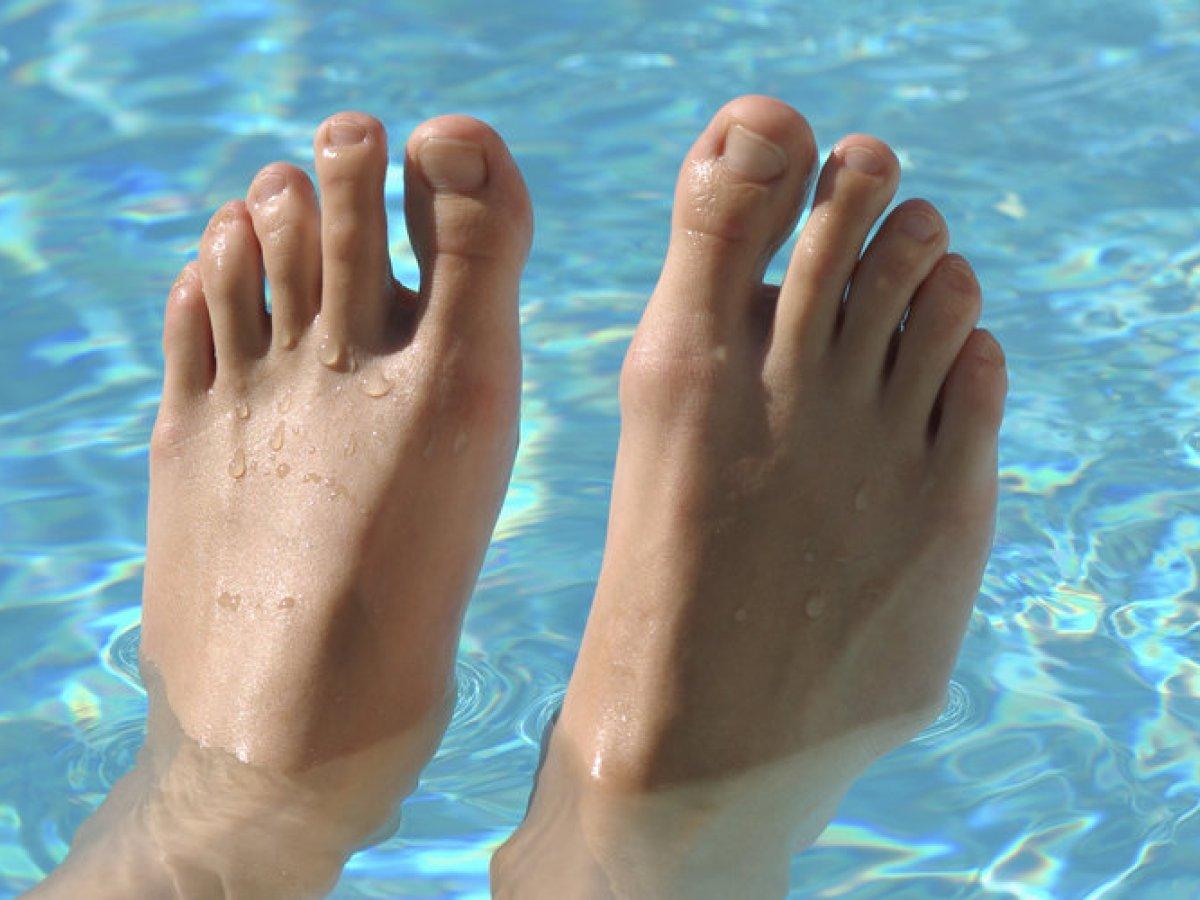 Fußform ägyptische Fußfehlstellungen